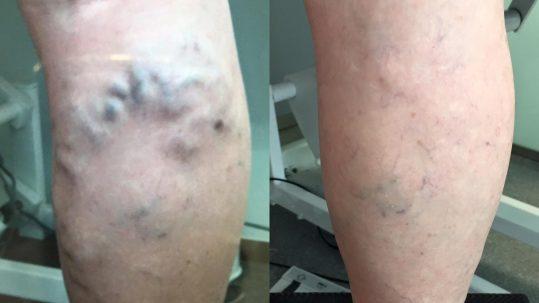 resultado escleroterapia con espuma