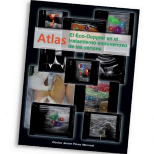 Atlas eco-doppler. Doctor Pérez Monreal